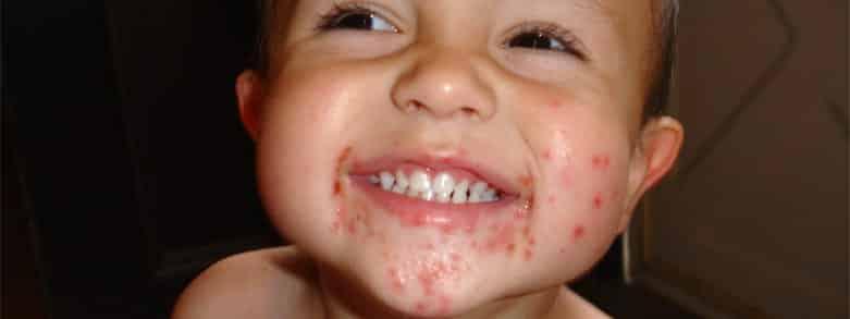 Barn skrattar men har höstblåsor